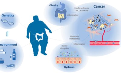 PRECISION NUTRITION FOR TARGETING LIPID METABOLISM IN COLORECTAL CANCER.